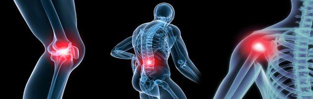 Who-gets-Osteoarthritis