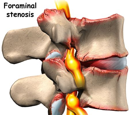 low_back_pain_conditions06