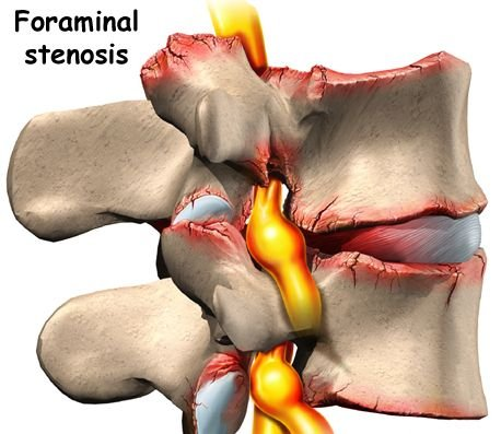 Foraminal stenosis, low back pain condition