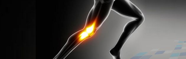 What Is Patello Femoral Pain Syndrome