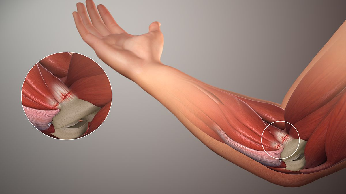 What Is Golfer S Elbow Or Medial Epicondylitis
